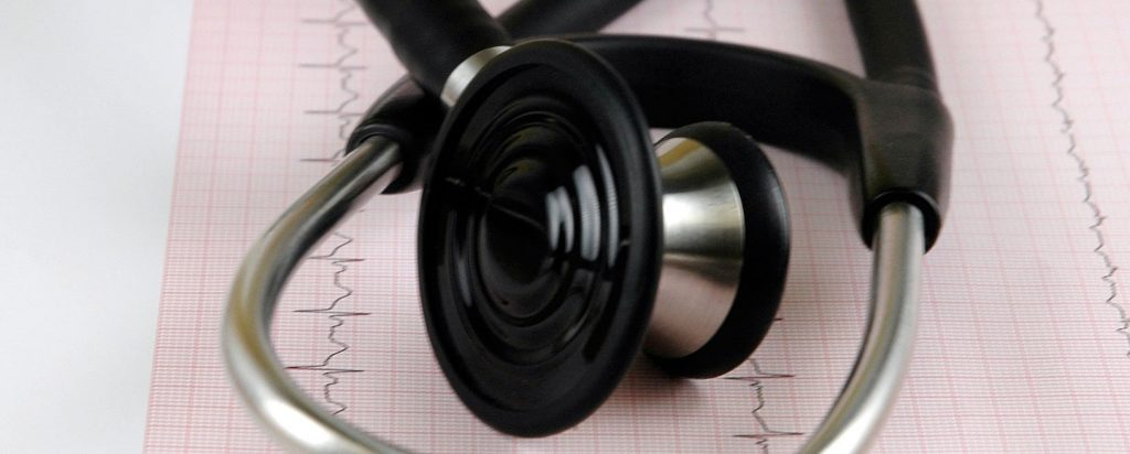 interpretación del electrocardiograma