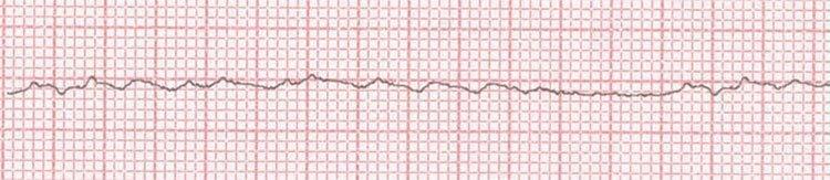 Fibrilación ventricular fina