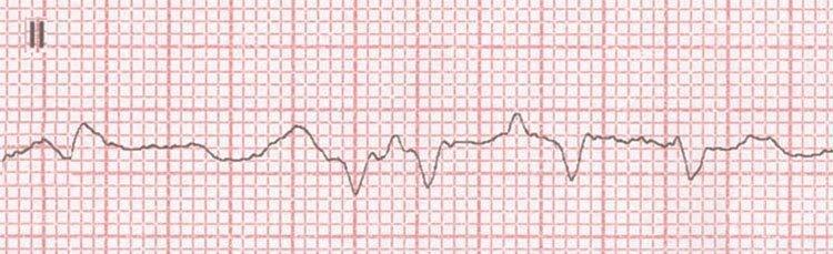 Fibrilación ventricular gruesa