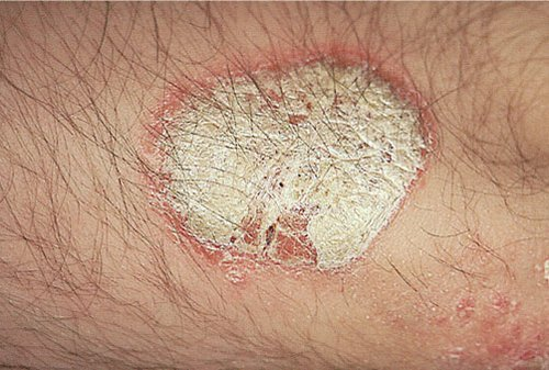 Placa Eritematoescamosa en la Psoriasis