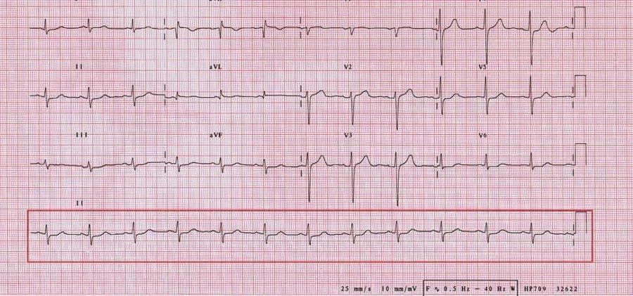 6 segundos del EKG - tutomedicblogspotcom