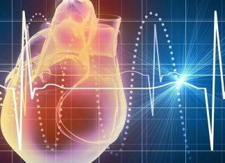 Bloqueos cardiacos