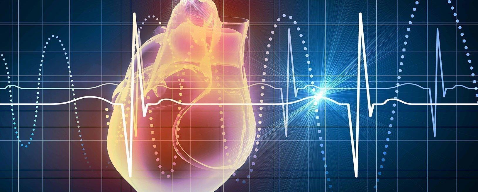 Bloqueos cardiacos en el ECG | EMS Spain