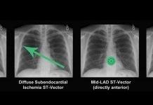 Cálculo del Eje cardiaco y sus desviaciones: cómo calcularlos