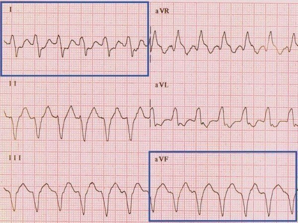 Eje Cardiaco Desviación Extrema