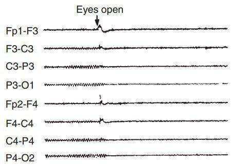 EEG normal