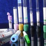 El señor de las muestras: La comunidad de los tubos