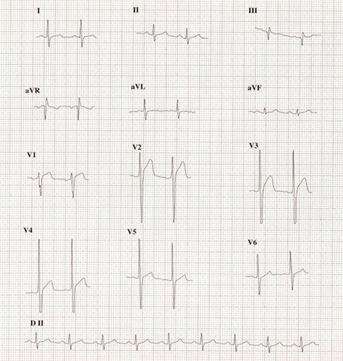 Casos clínicos electrocardiográficos razonados