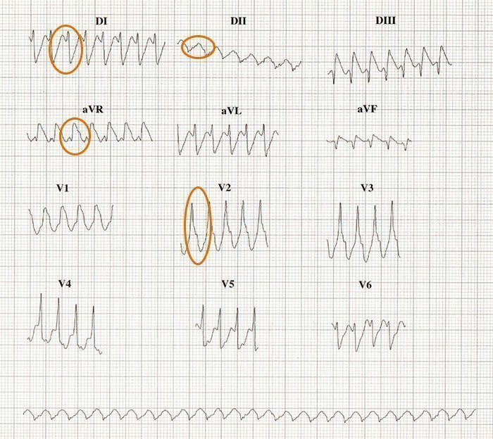 Taquicardia Ventricular.
