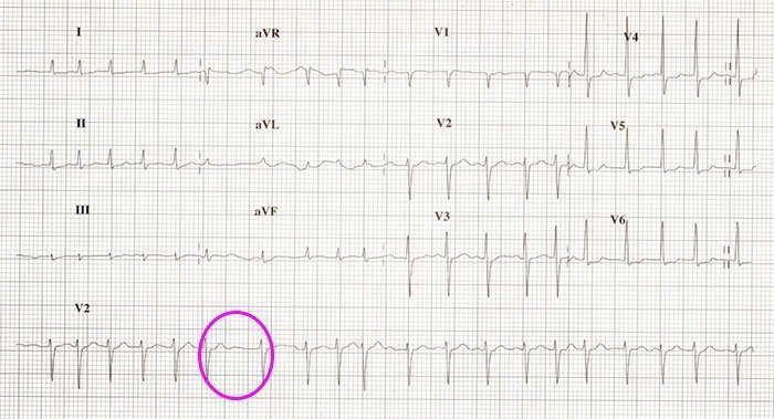 Fibrilación auricular con respuesta ventricular rápida.