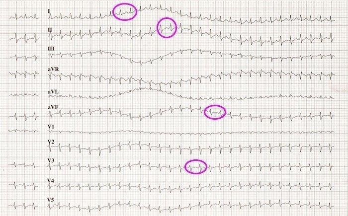 Taquicardia paroxística supraventricular por probable reentrada intranodal.