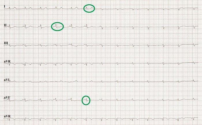 Taquicardia paroxística supraventricular por probable reentrada intranodal. Síndrome de preexcitación.