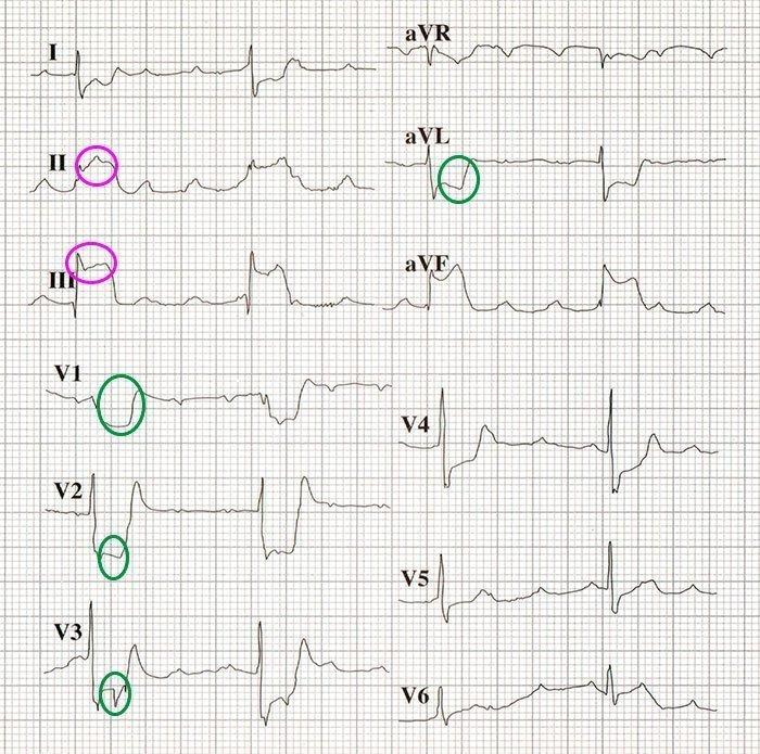 Infarto de miocardio posterior.