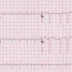 Arritmias cardiacas: Las 5 que debes saber identificar en el ECG.