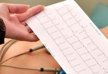 Casos electrocardiográficos razonados