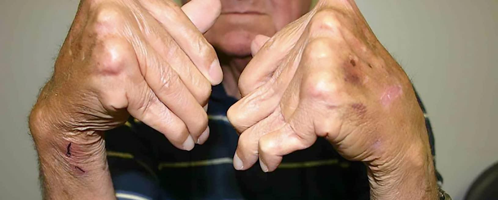 Artritis Reumatoide: La detección temprana es clave