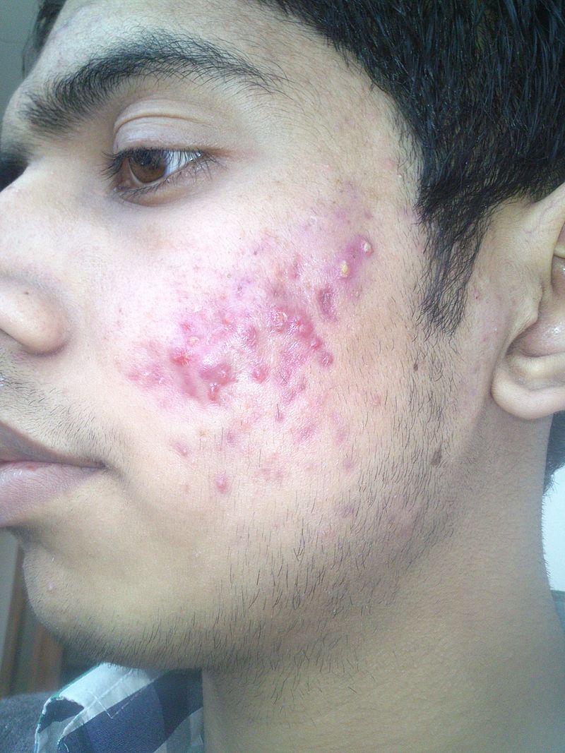 Acné vulgaris / User:Naveenhooda23 - CC 3.0 - Wikimedia