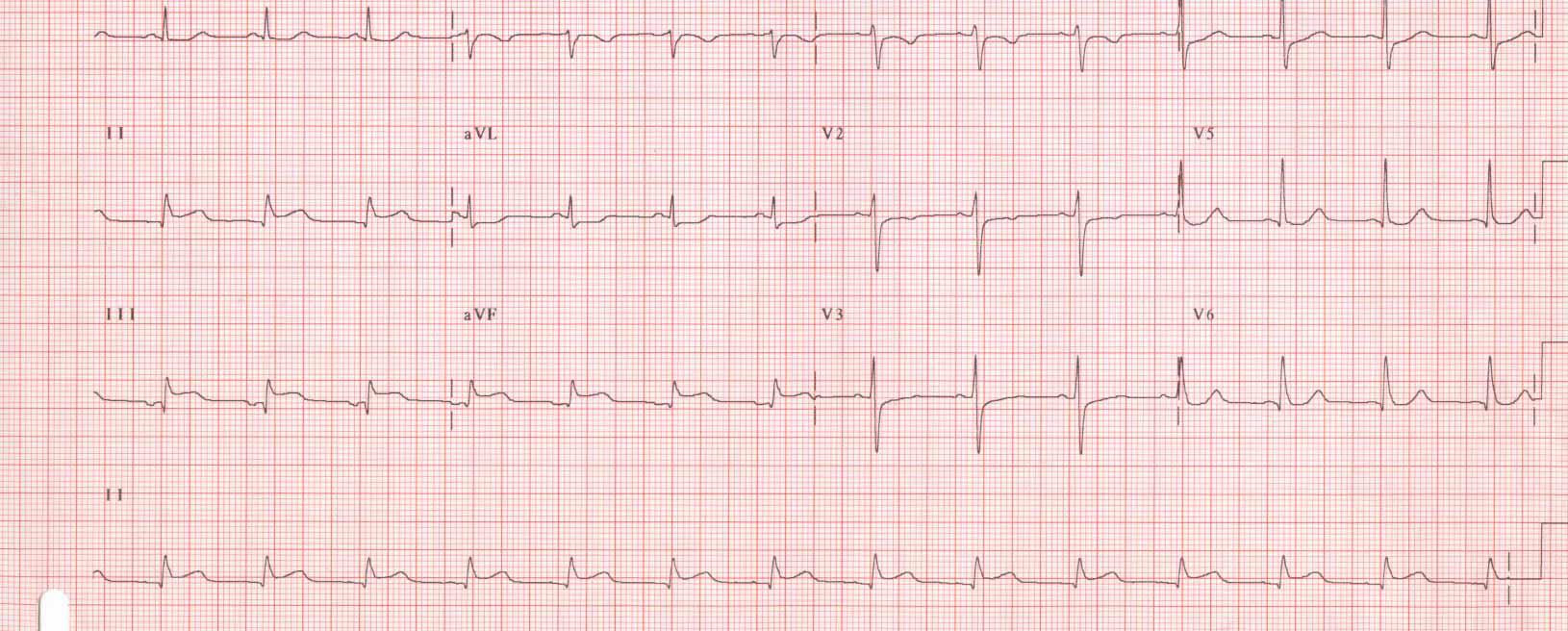 Infarto agudo del miocardio: El ABC del diagnóstico y tratamiento en urgencias
