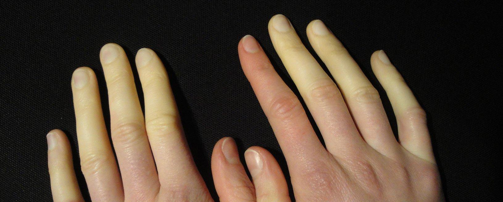 Lupus Eritematoso Sistémico: Descifrando el diagnóstico