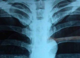 Neumotórax a tensión: Diagnóstico y Manejo en urgencias