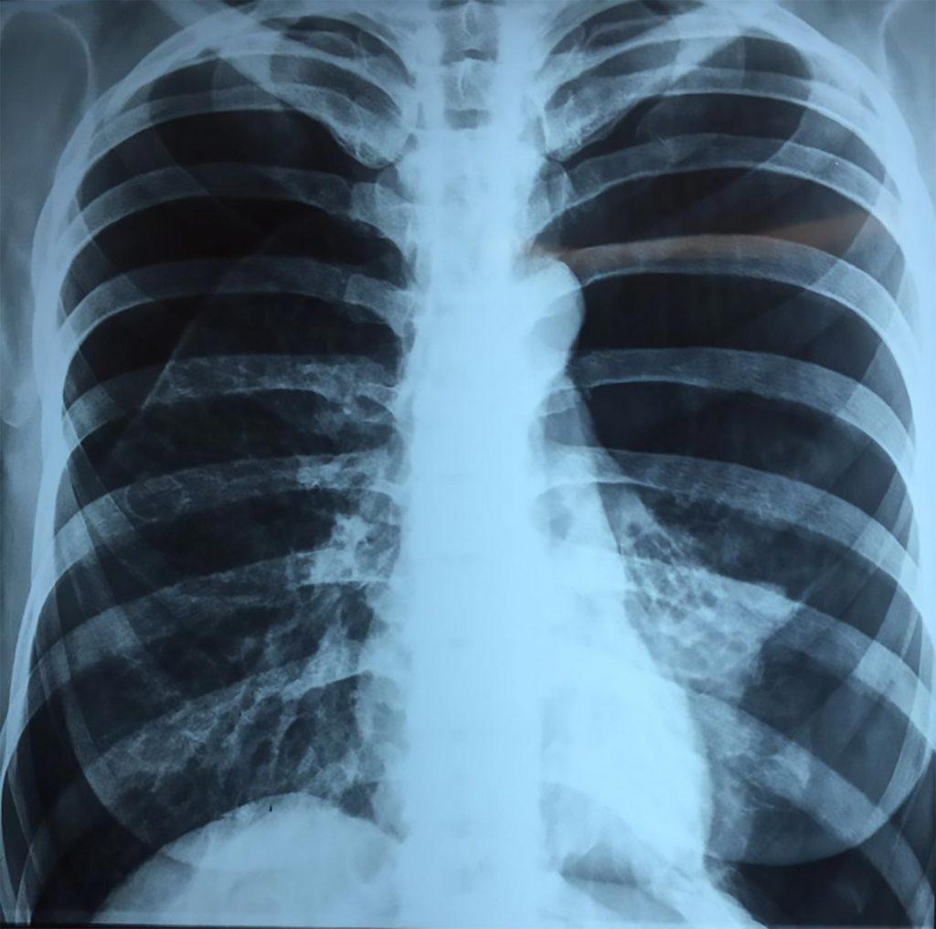 Rx. con imagen evidente de Neumotórax bilateral
