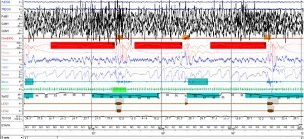 Polisomnografía para diagnóstico de apnea obstructiva del sueño