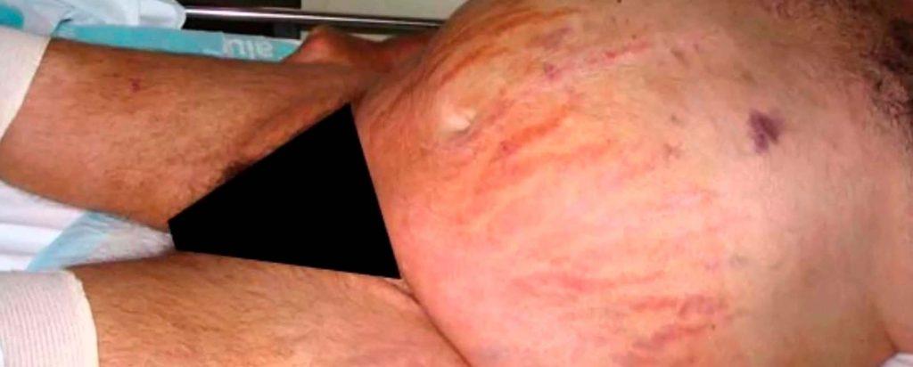 Síndrome de Cushing e Insuficiencia Suprarrenal