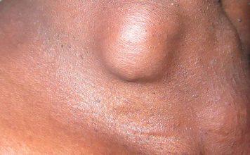 Cáncer de tiroides y nódulos tiroideos