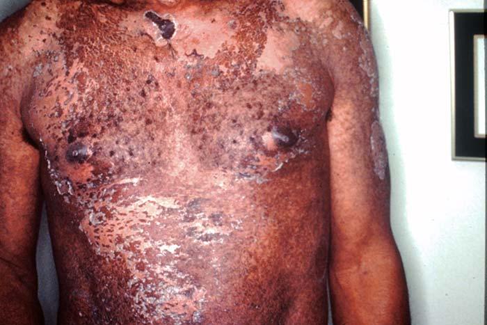 Necrolisis epidérmica tóxica