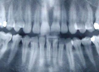 osteonecrosis mandibular