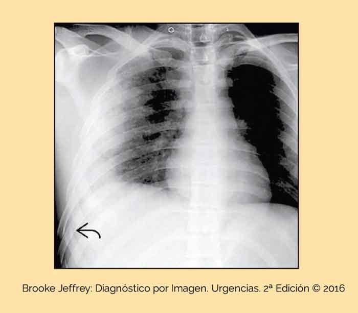 Contusión Pulmonar