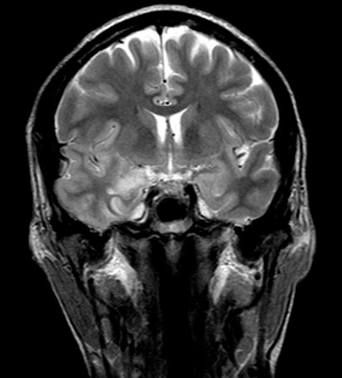 Encefalitis viral herpética