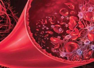 Síndrome hemolítico urémico y púrpura trombotica trombocitopénica
