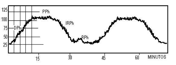 Ondas A en meseta de Lundberg. Se caracterizan por su morfología, aumento de 50 a 100 mHg., duración de entre 5 y 20 min. Reflejan el fallo en la autorregulación cerebral y herniación inminente en el síndrome de hipertensión intracraneal.