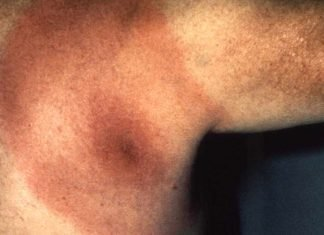 Borreliosis de Lyme, eritema migrans.