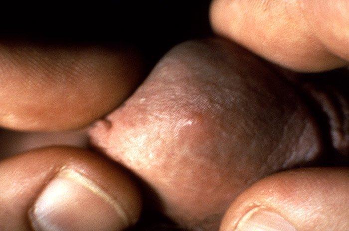 Herpes simple genital
