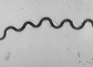 Treponema pallidum, causante de la sífilis