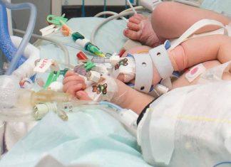 Encefalopatía Neonatal