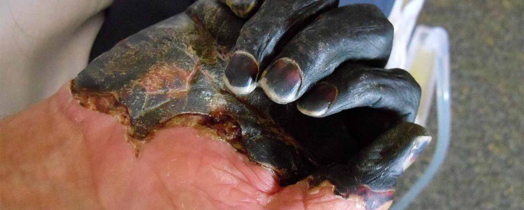 Leptospirosis, carbunco o ántrax, tularemia, erisipeloide y la peste.