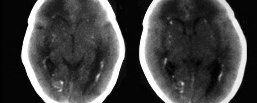 Infección congénita por citomegalovirus