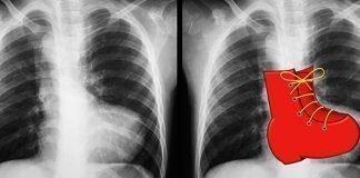 Cardiopatías Congénitas Cianógenas