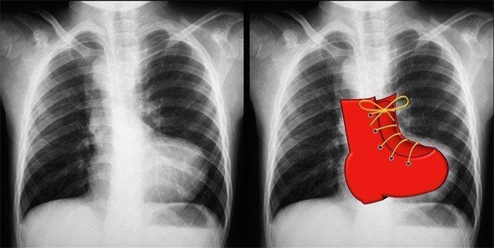 Caso de tetralogía de Fallot. El ápex cardíaco elevado sugiere un agrandamiento del ventrículo derecho. El principal segmento de la arteria pulmonar es cóncavo. Se muestra el arco aórtico del lado derecho. Hay disminución de la vascularización pulmonar (oligohemia pulmonar). Caso cortesía del Dr. Vincent Tatco, Radiopaedia.org, rID: 43059