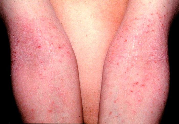 Dermatitis Atópica del Adolescente y Adulto.