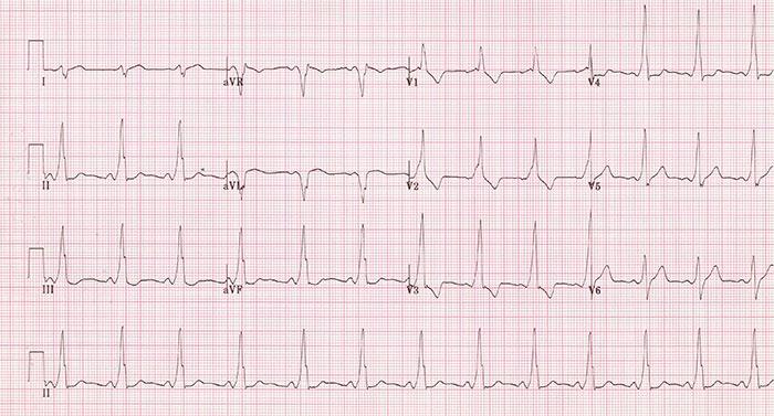 Wolff-Parkinson-White  en el ECG