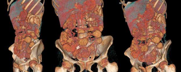 Enfermedad Inflamatoria Intestinal colitis ulcerosa y enfermedad de Crohn
