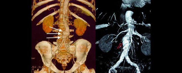 Aneurismas de la Aorta