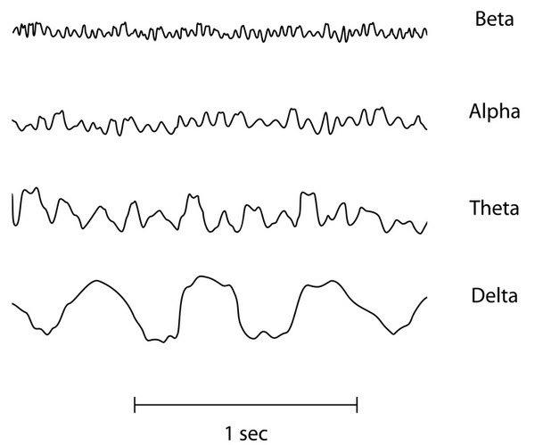 Tipos de ondas HD