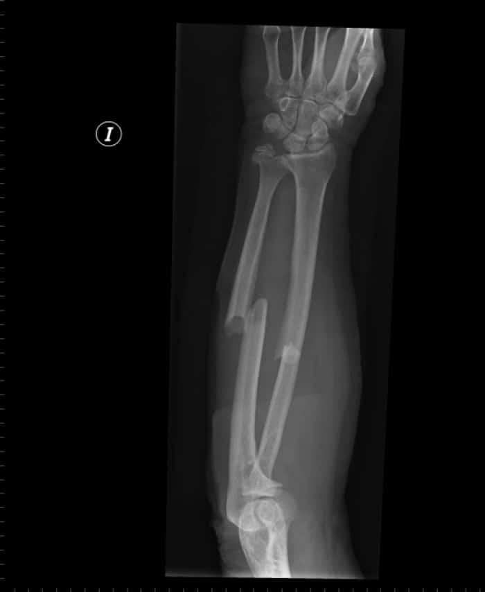 Las 9 fracturas más comunes que debes conocer en urgencias.