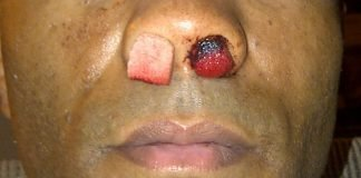 TonyTheTiger/Wikimedia commons/CC-3.0 (modificada) https://commons.wikimedia.org/wiki/File:Epistaxis_packing.jpg