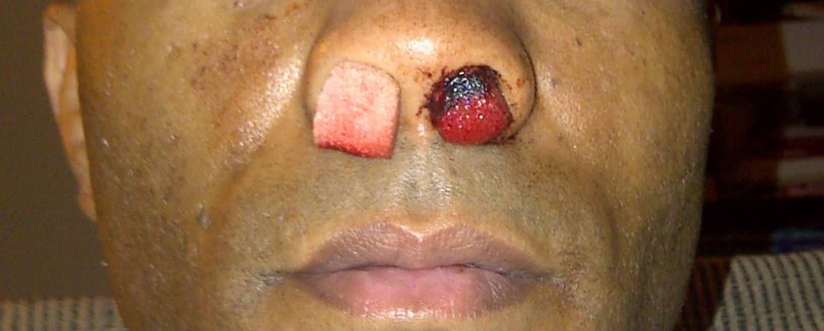 Hemorragia nasal y coagulos